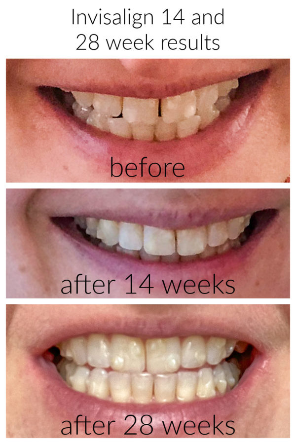 Invisalign results after 14 weeks and Invisalign results after 28 weeks
