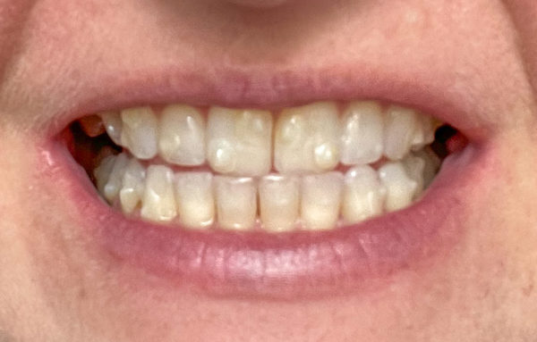 28 week Invisalign results