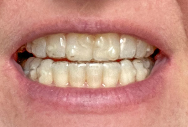 Wearing Invisalign, the aligners are not invisible but less noticeable than braces.